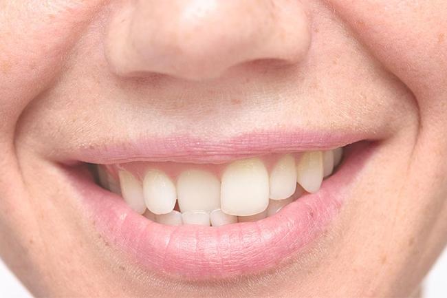 Crooked Teeth Bendigo