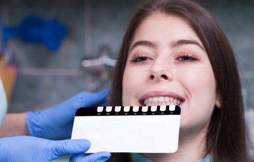 teeth-whitening-treatment-bendigo