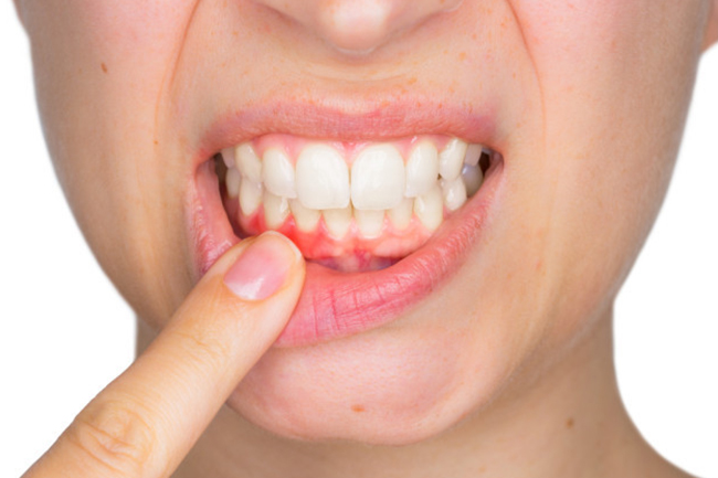 gum disease high street dental