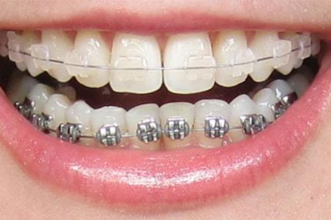 braces-bendigo