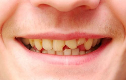 cracked-tooth-treatment-bendigo