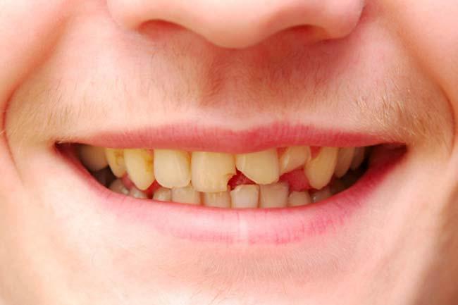 cracked-tooth-treatment-bendigo