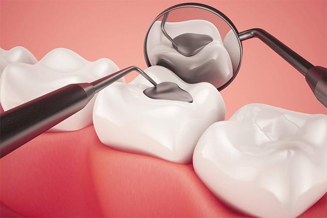 tooth-filling-bendigo