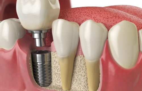 dental implants treatment bendigo
