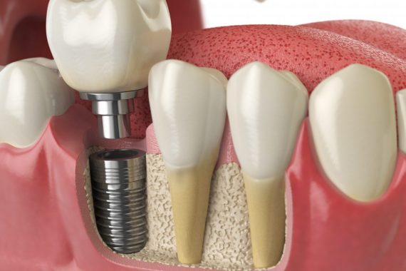 dental implants treatment bendigo